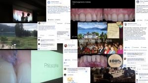 Smile,Genève,confiance,dentiste esthétique, microscope, facette,veneers,worntheeth,gencive,suisse